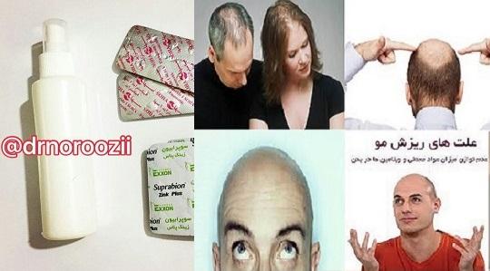 محلول رویش مو جدید سال 1396,تونیک گیاهی و قرص رویش مو و درمان ریزش موی دکتر نوروزی بافرمول شگفتی ساز